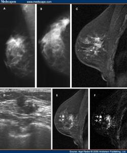 Lobular Carcinoma